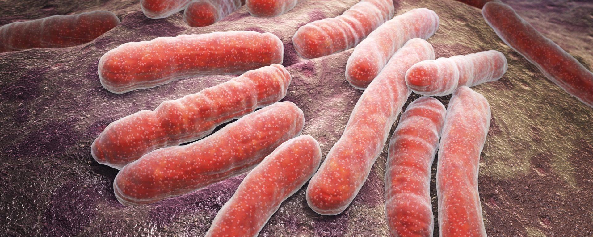 Tuberkulose – eine alte Krankheit wieder auf dem Vormarsch?
