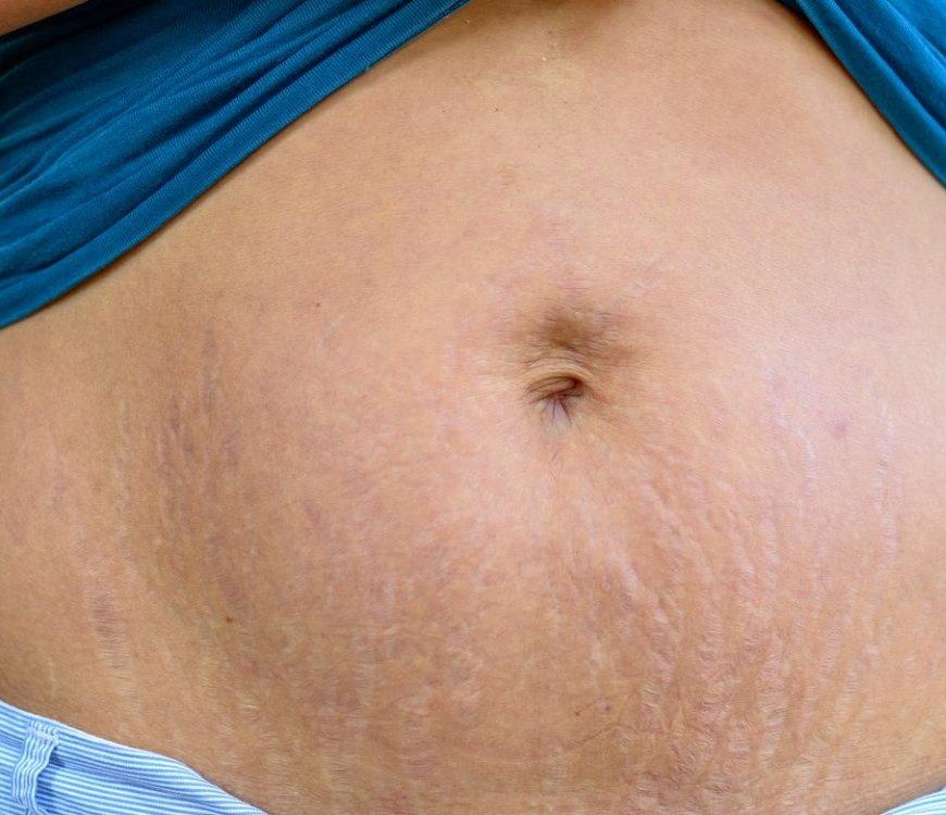 Wunschgewicht nach der Geburt